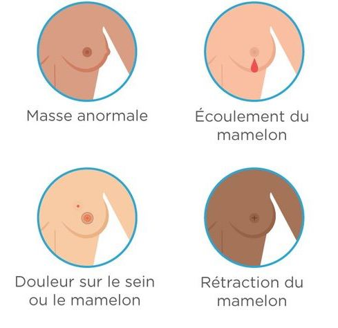 Breast Cancer 2_fr