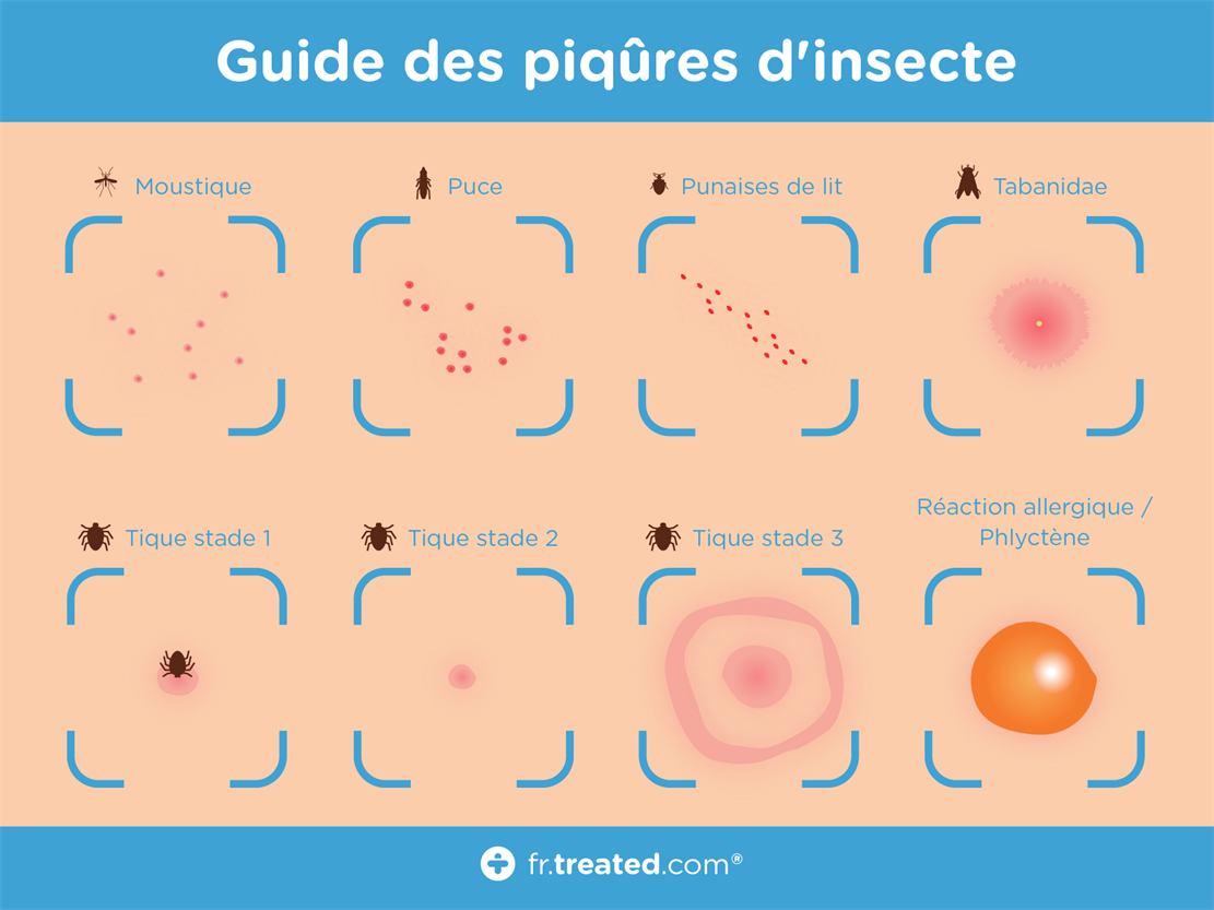 TREATED - Guide des piqûres d'insecte