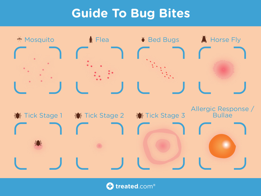 TREATED - Guide To Bug Bites Jul 16 Proof1