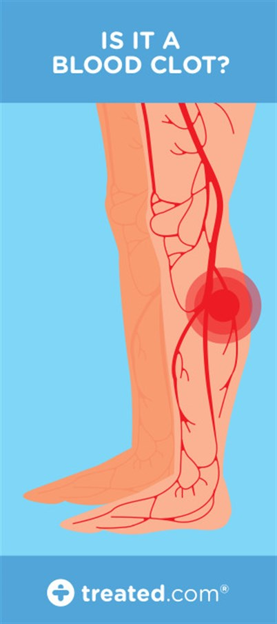 Blood Clot Cramp Or Pulled Muscle How Can I Tell The Difference