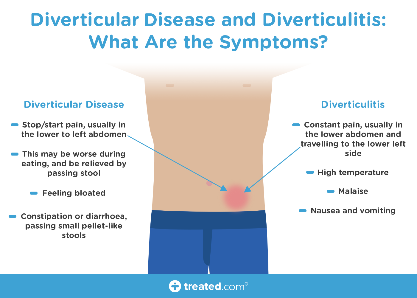 Diverticular Disease and Diverticulitis: Are They Related to