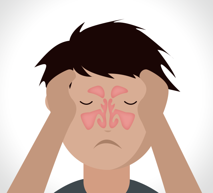 what-is-sinusitis-and-what-causes-it-2ukthumb
